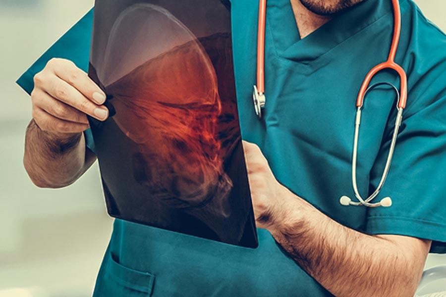 indianapolis-brain-injury